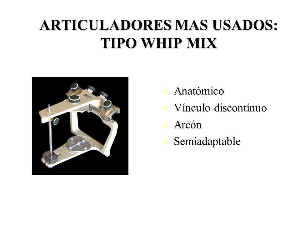 ARTICULADORES MAS USADOS: TIPO WHIP MIX