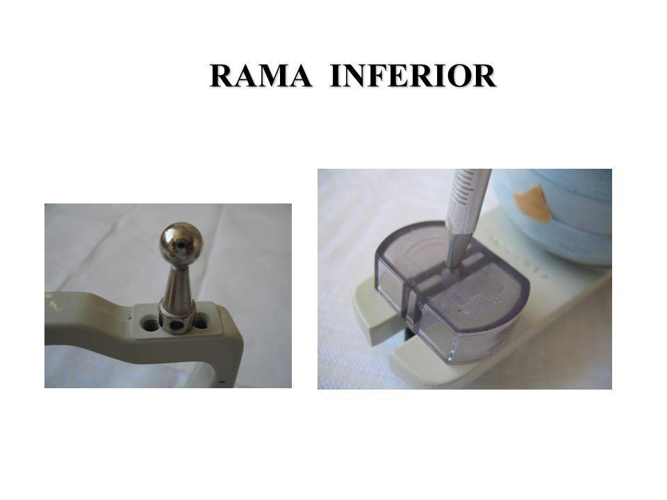 RAMA INFERIOR