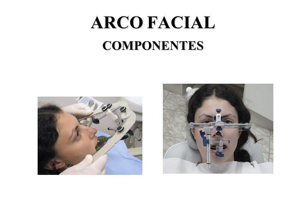 ARCO FACIAL COMPONENTES