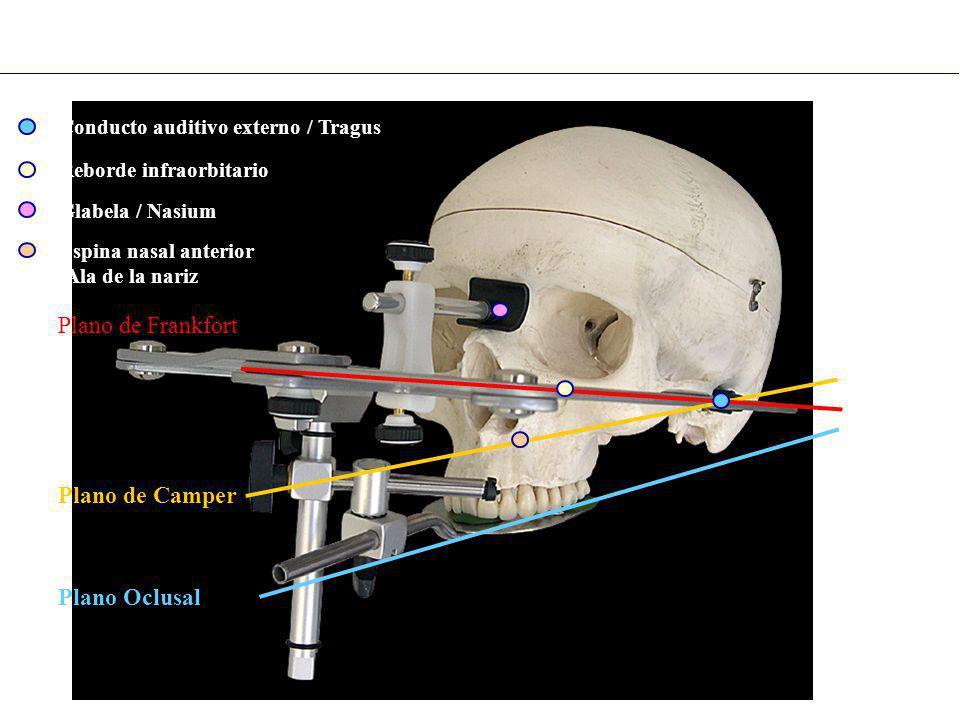 Arco Facial : planos de referencia