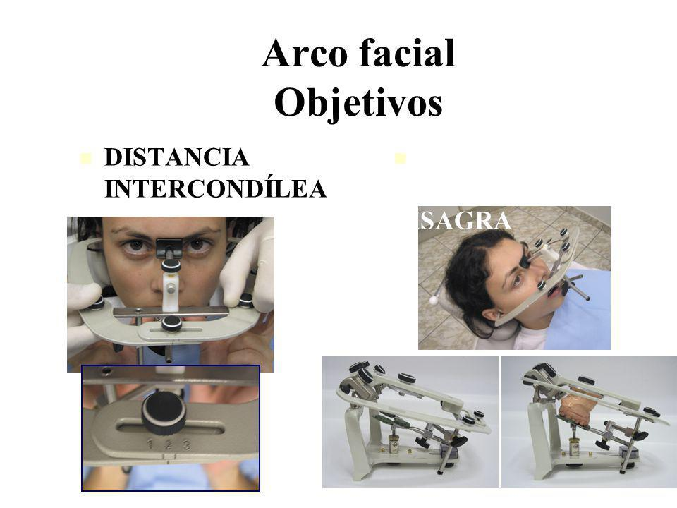 Arco facial Objetivos DISTANCIA INTERCONDÍLEA