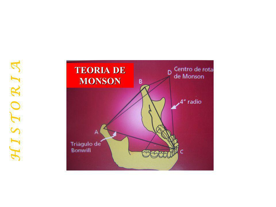 TEORIA DE MONSON H I S T O R I A