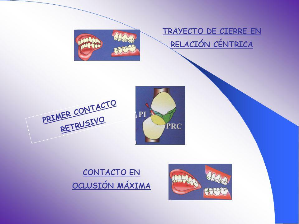 TRAYECTO DE CIERRE EN RELACIÓN CÉNTRICA PRIMER CONTACTO RETRUSIVO