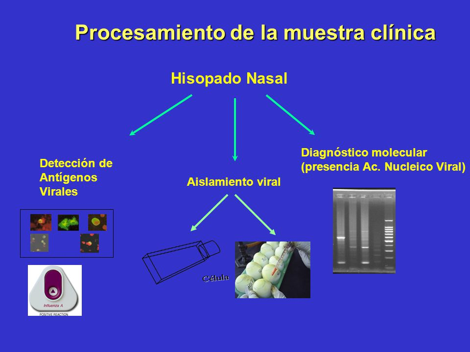 Procesamiento de la muestra clínica
