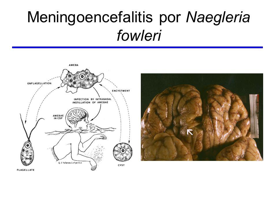 Meningoencefalitis por Naegleria fowleri