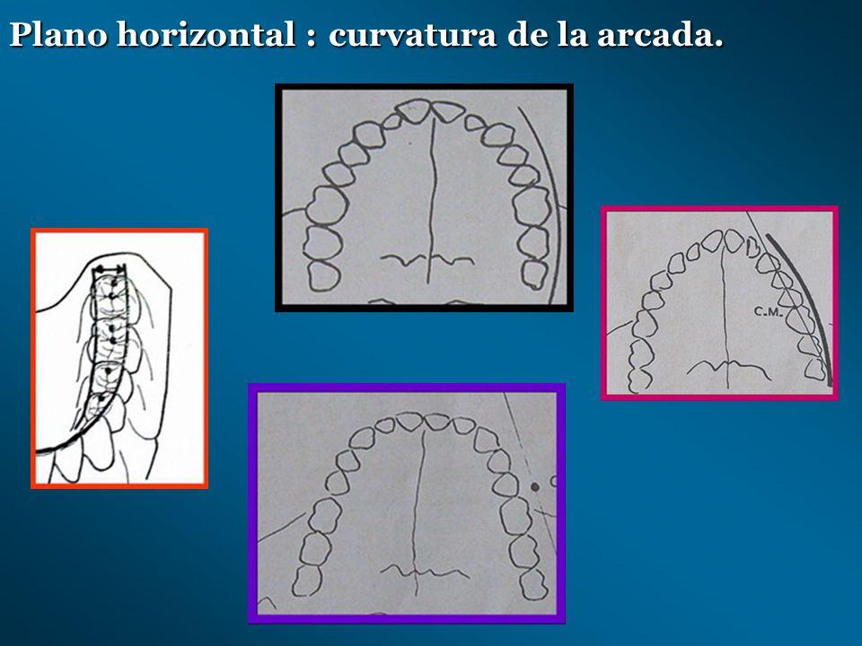 Plano horizontal : curvatura de la arcada.