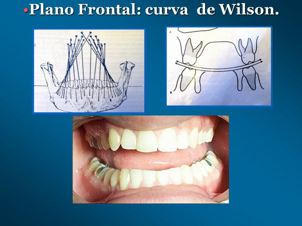 Plano Frontal: curva de Wilson.
