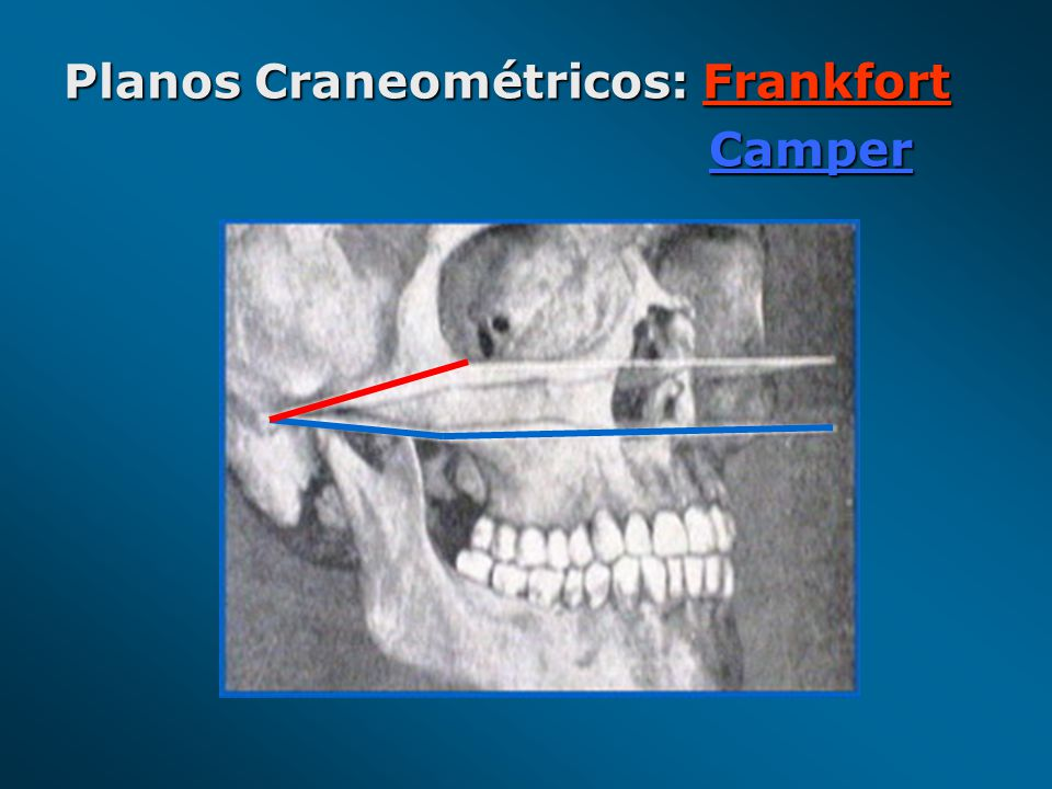 Planos Craneométricos: Frankfort