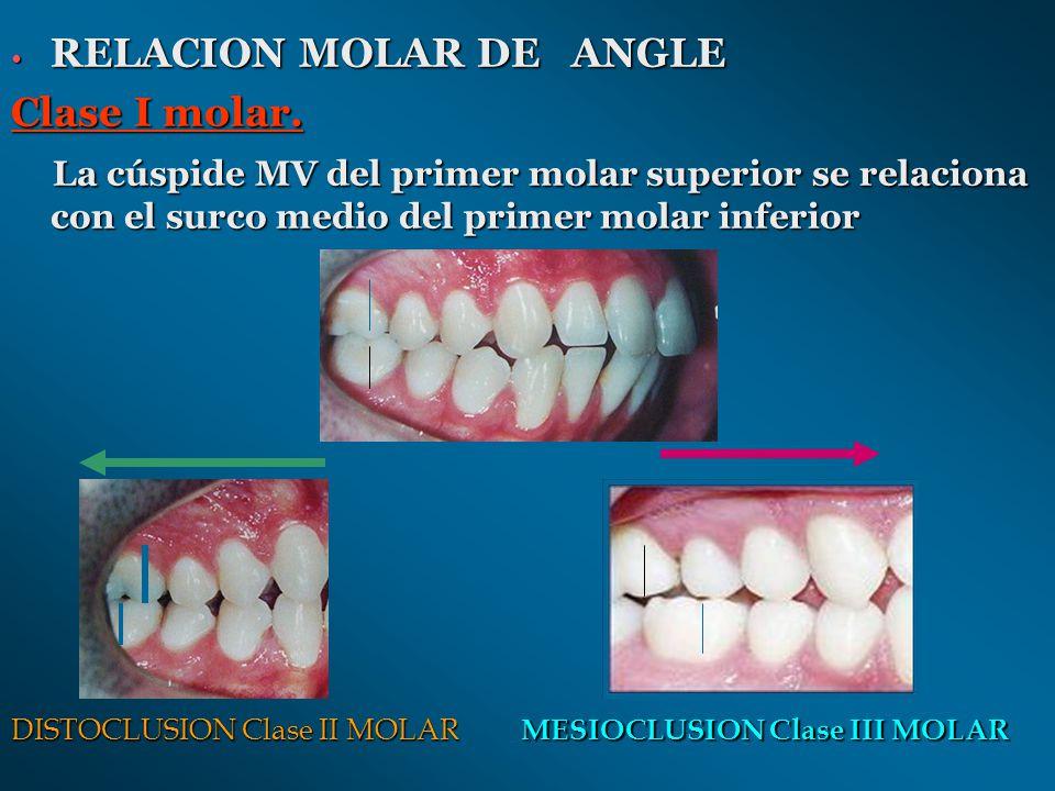 RELACION MOLAR DE ANGLE Clase I molar.