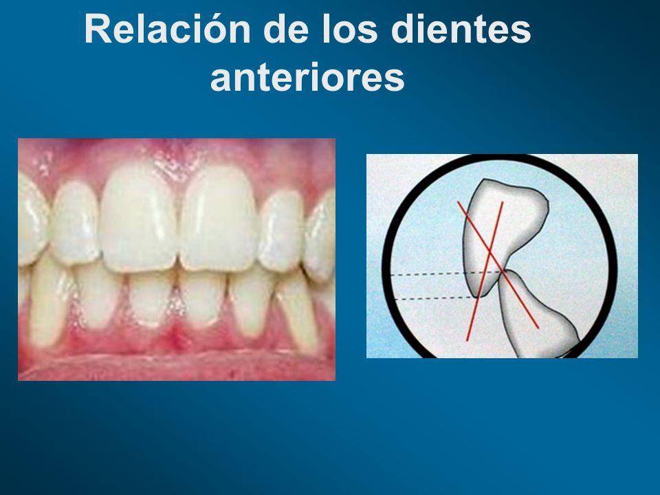 Relación de los dientes anteriores