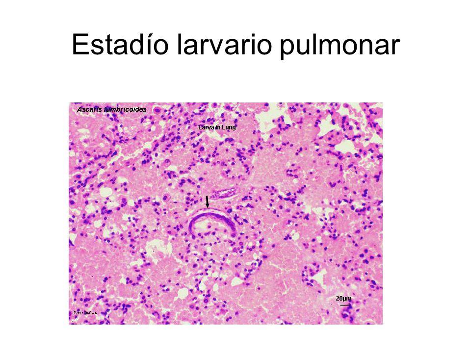 Estadío larvario pulmonar