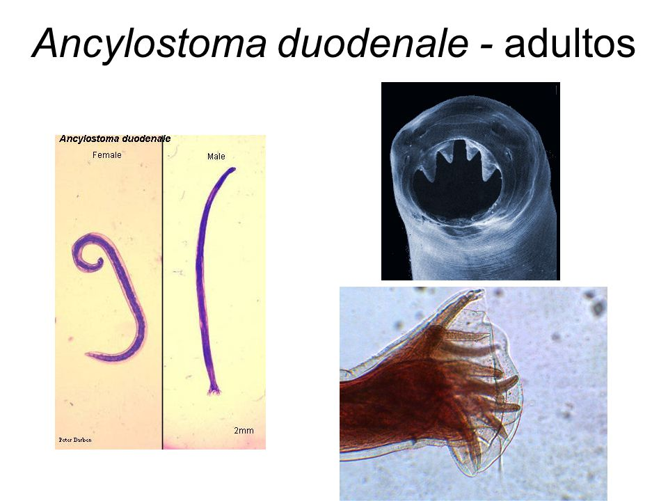 Ancylostoma duodenale - adultos