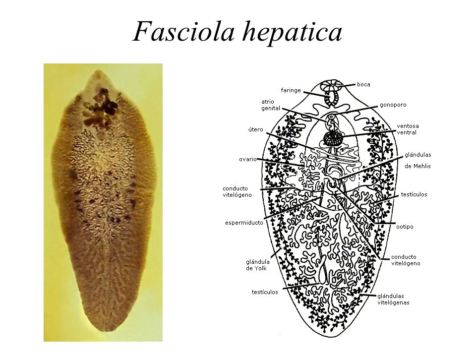 an introduction to the trematodes fasciola hepatica Trematode (flukes) infections occur worldwide trematodes infections occur worldwide trematodes (flukes) have complicated life cycles, with alternating asexual and sexual developments fasciola hepatica, clonorchis sinensis (also called opisthorchis sinensis).