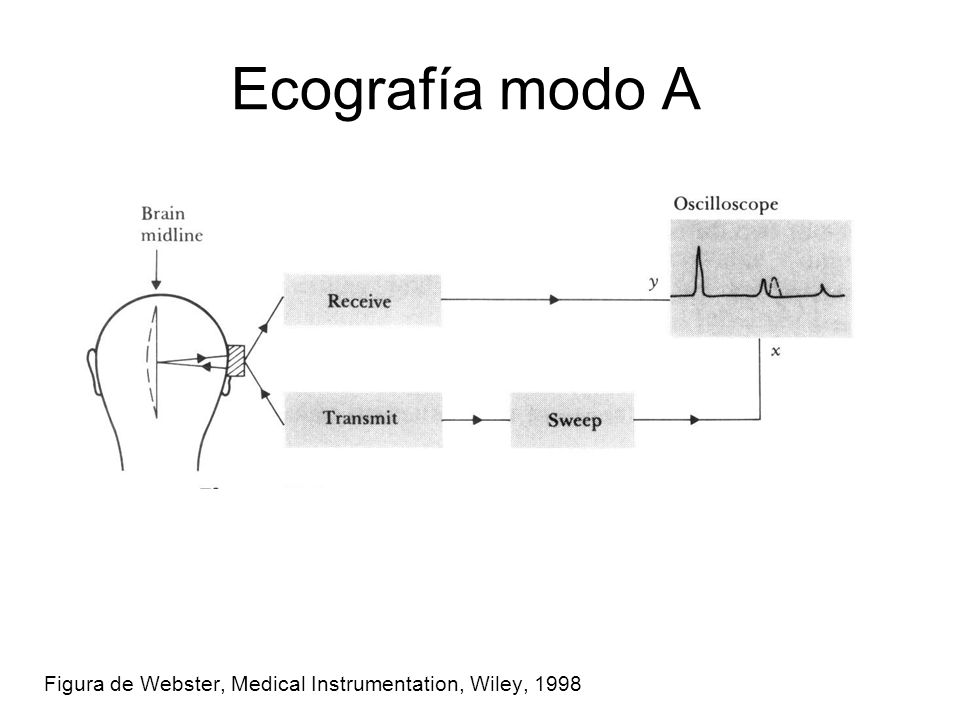 Ecografía modo A Figura de Webster, Medical Instrumentation, Wiley, 1998