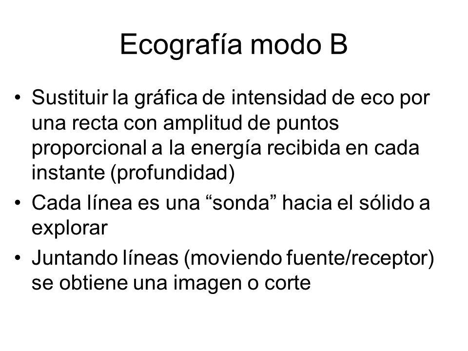 Ecografía modo B