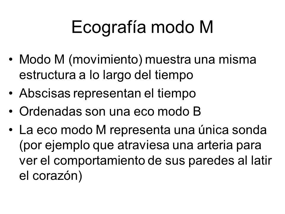 Ecografía modo M Modo M (movimiento) muestra una misma estructura a lo largo del tiempo. Abscisas representan el tiempo.