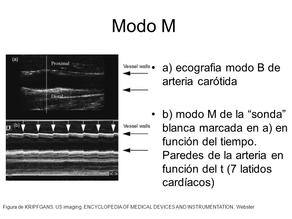 Modo M a) ecografia modo B de arteria carótida