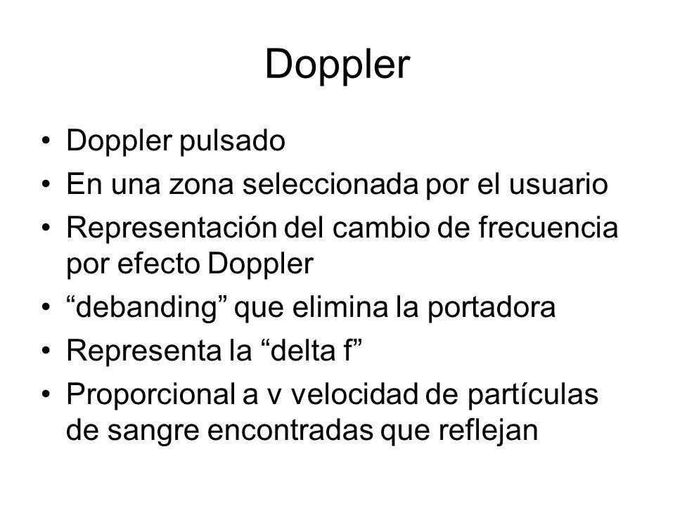 Doppler Doppler pulsado En una zona seleccionada por el usuario