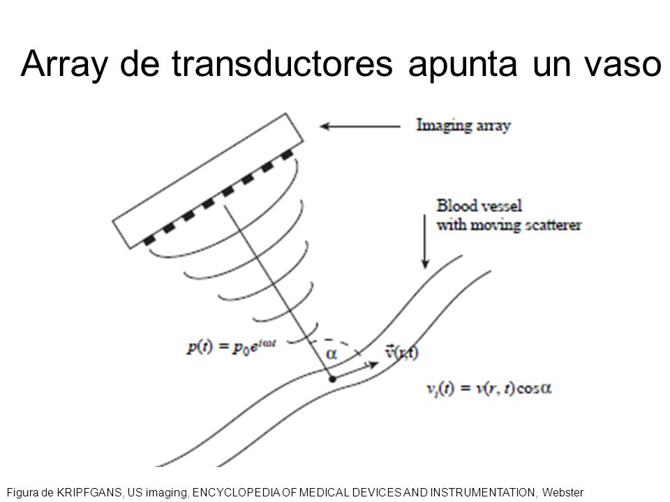Array de transductores apunta un vaso