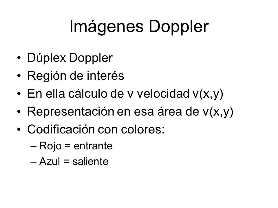 Imágenes Doppler Dúplex Doppler Región de interés