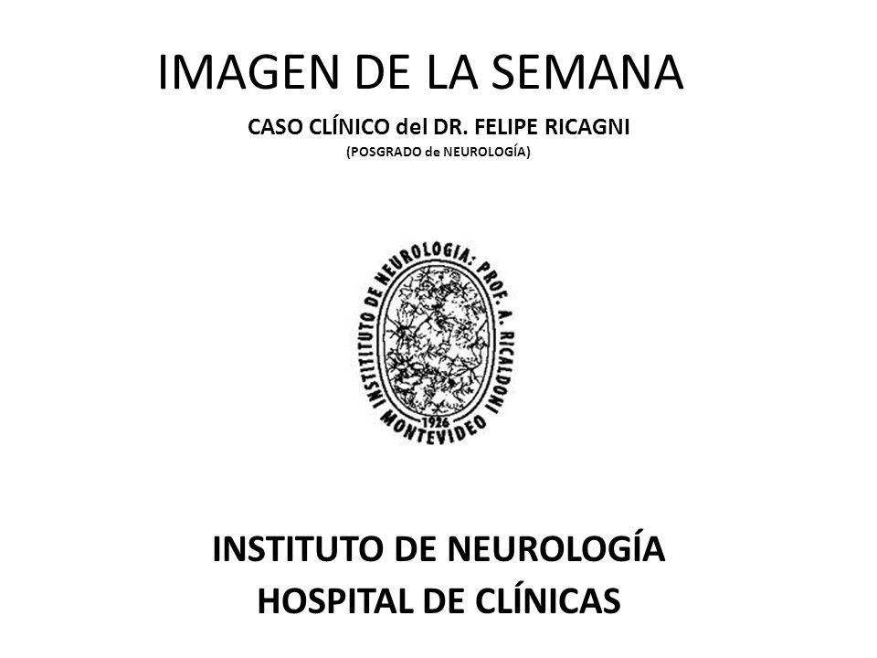 IMAGEN DE LA SEMANA INSTITUTO DE NEUROLOGÍA HOSPITAL DE CLÍNICAS