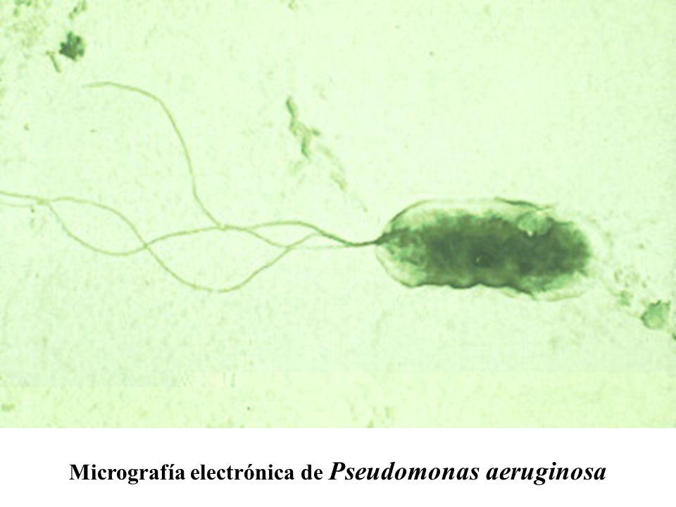 Micrografía electrónica de Pseudomonas aeruginosa