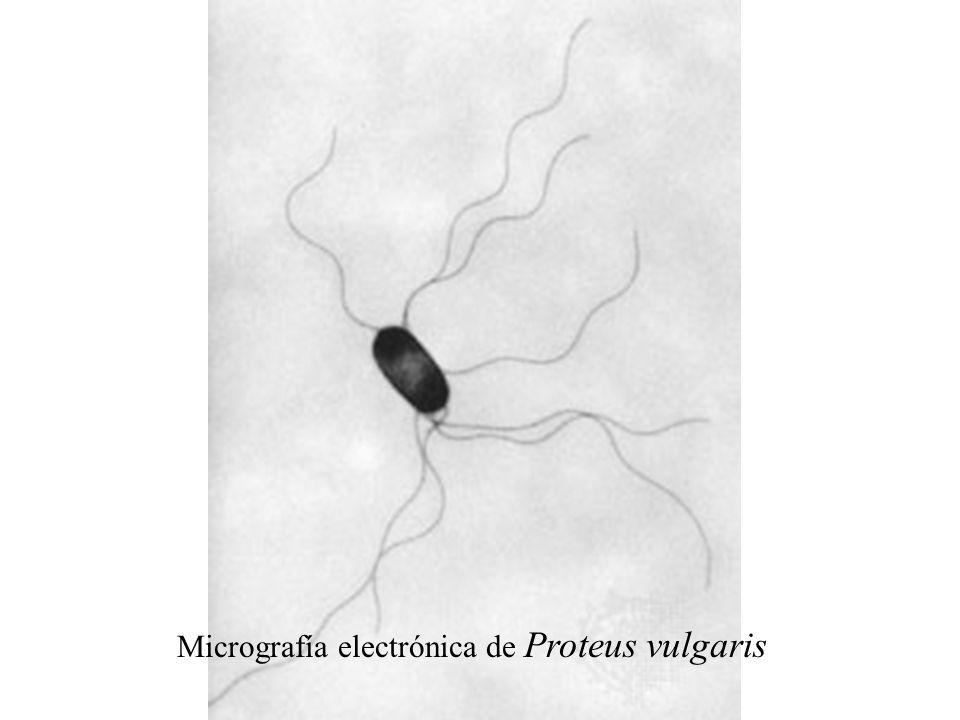 Micrografía electrónica de Proteus vulgaris