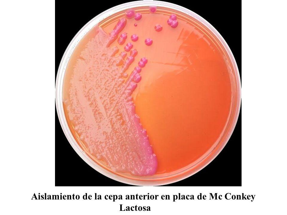 Aislamiento de la cepa anterior en placa de Mc Conkey Lactosa