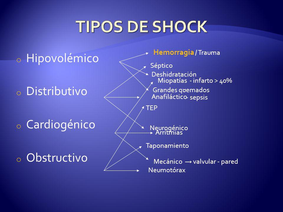 TIPOS DE SHOCK Hipovolémico Distributivo Cardiogénico Obstructivo