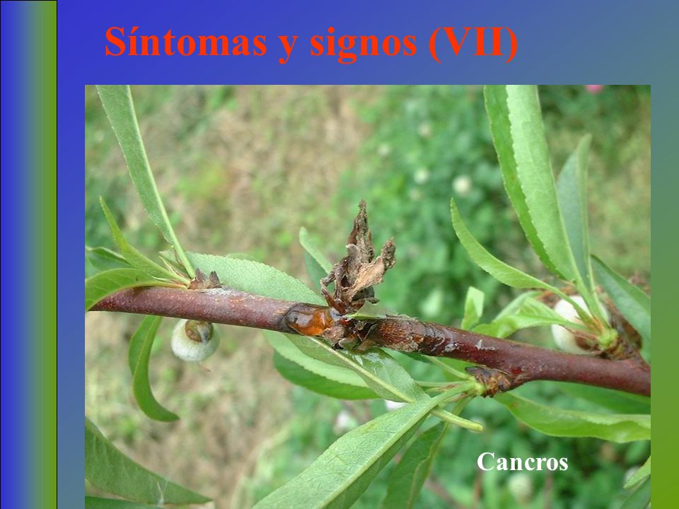 Síntomas y signos (VII)