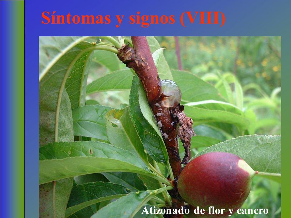 Síntomas y signos (VIII)
