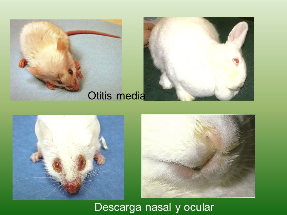 Otitis media Descarga nasal y ocular