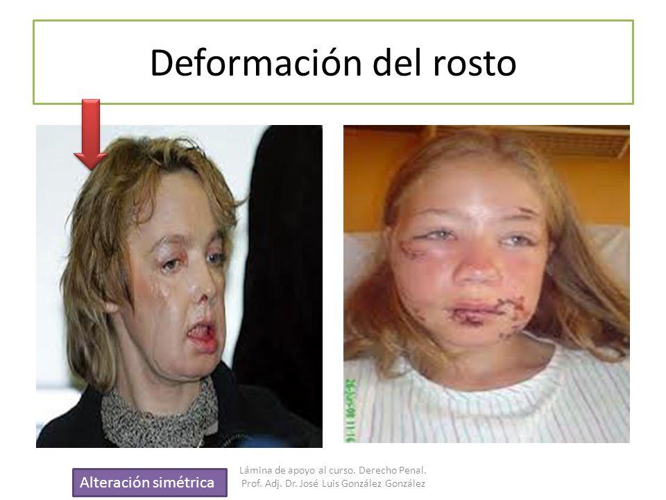 Deformación del rosto Alteración simétrica