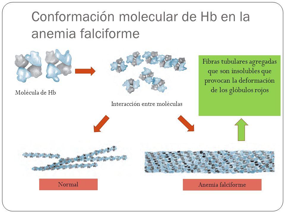 Conformación molecular de Hb en la anemia falciforme