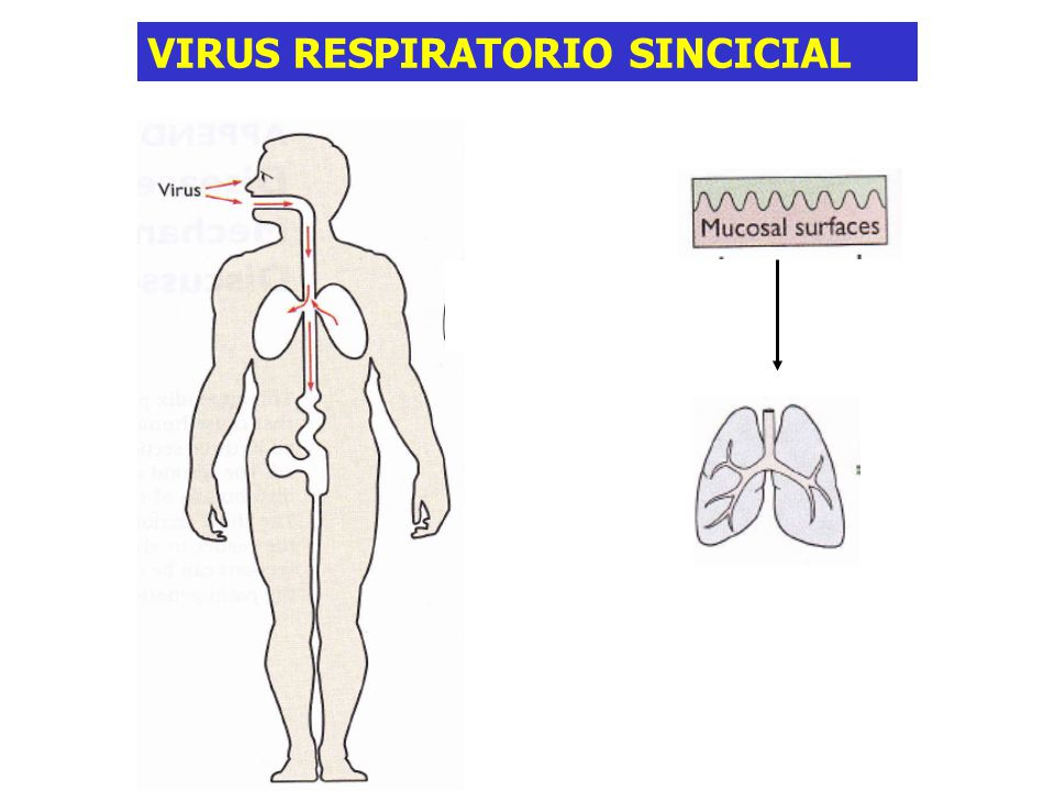 VIRUS RESPIRATORIO SINCICIAL