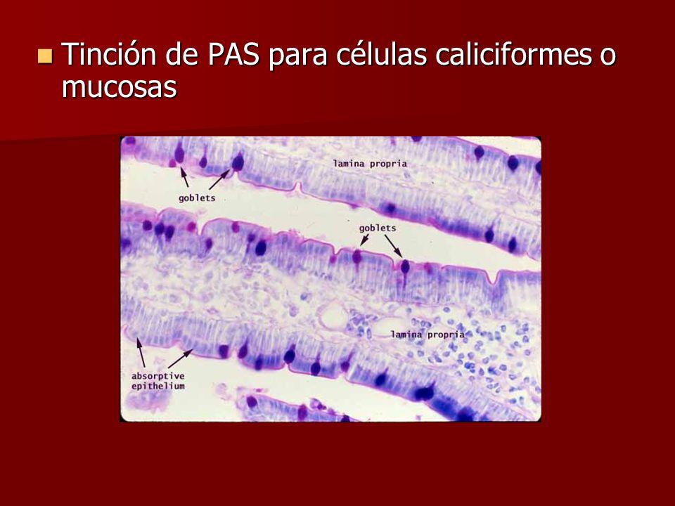 Tinción de PAS para células caliciformes o mucosas