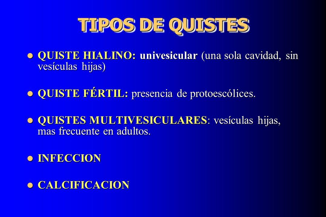 TIPOS DE QUISTES QUISTE HIALINO: univesicular (una sola cavidad, sin vesículas hijas) QUISTE FÉRTIL: presencia de protoescólices.