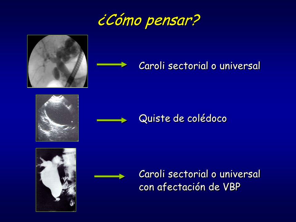 ¿Cómo pensar Caroli sectorial o universal Quiste de colédoco