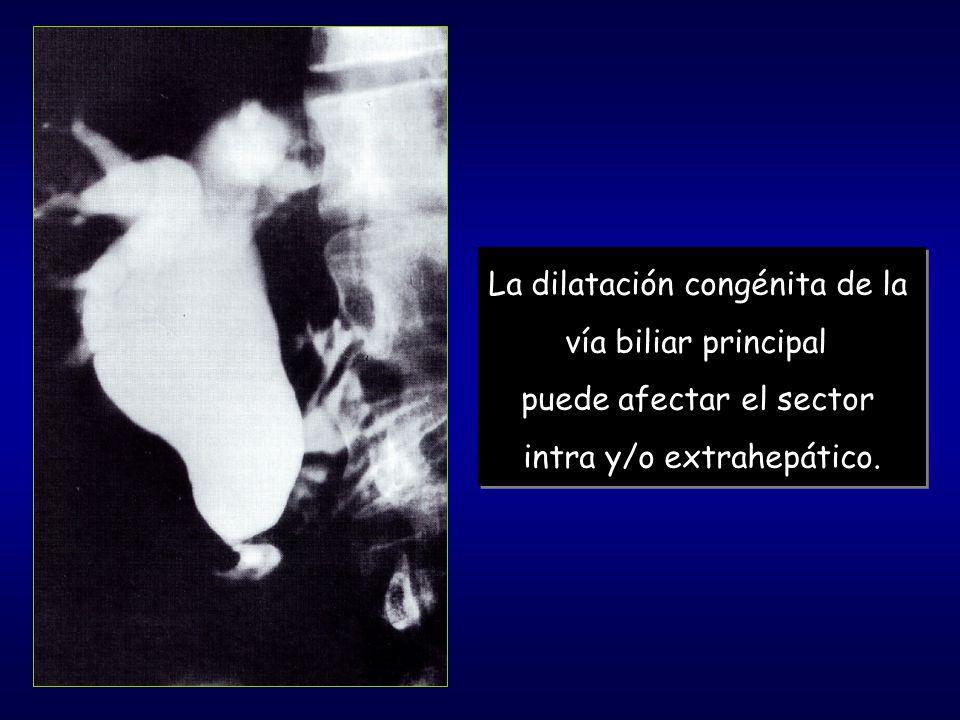 La dilatación congénita de la vía biliar principal