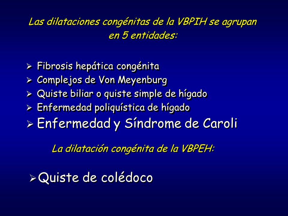Las dilataciones congénitas de la VBPIH se agrupan