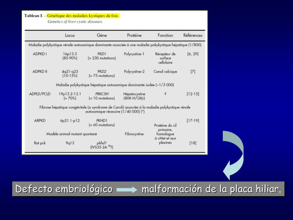 Defecto embriológico malformación de la placa hiliar.