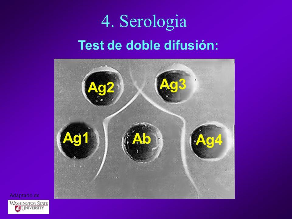 4. Serologia Test de doble difusión: Ag3 Ag2 Ag1 Ab Ag4 Adaptado de