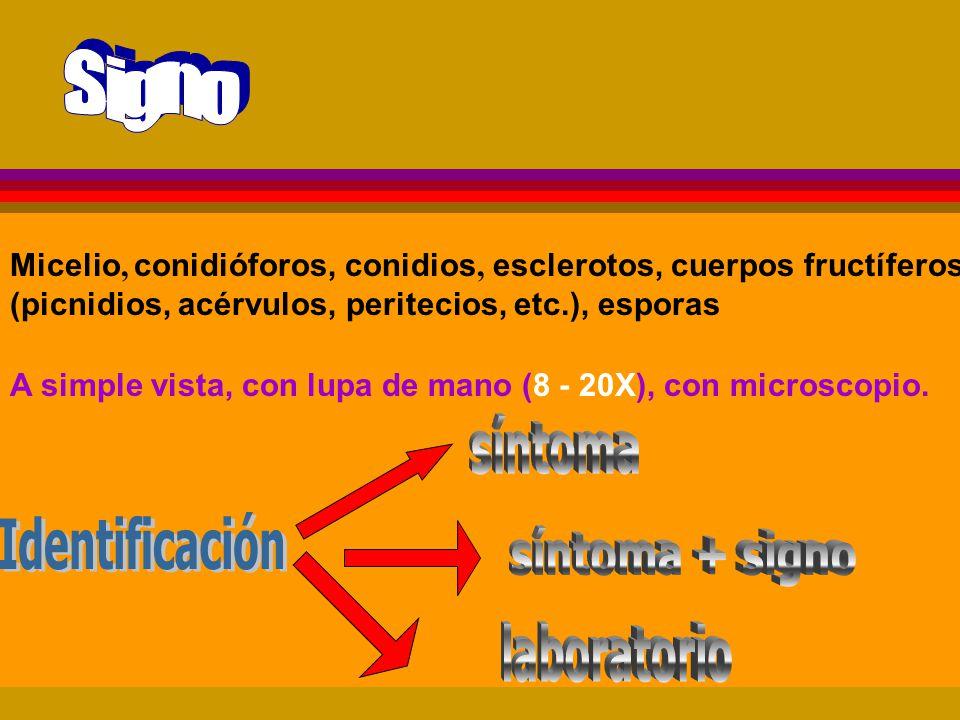 síntoma Identificación síntoma + signo laboratorio