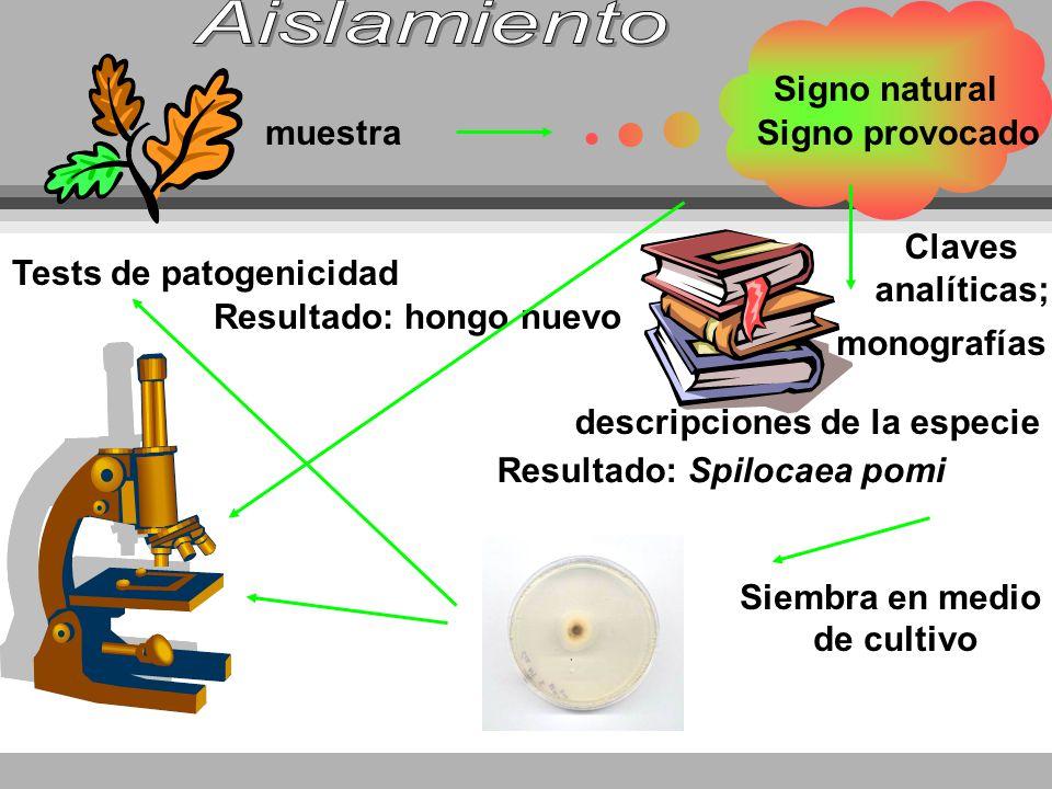 Aislamiento Signo natural muestra Signo provocado Claves analíticas;
