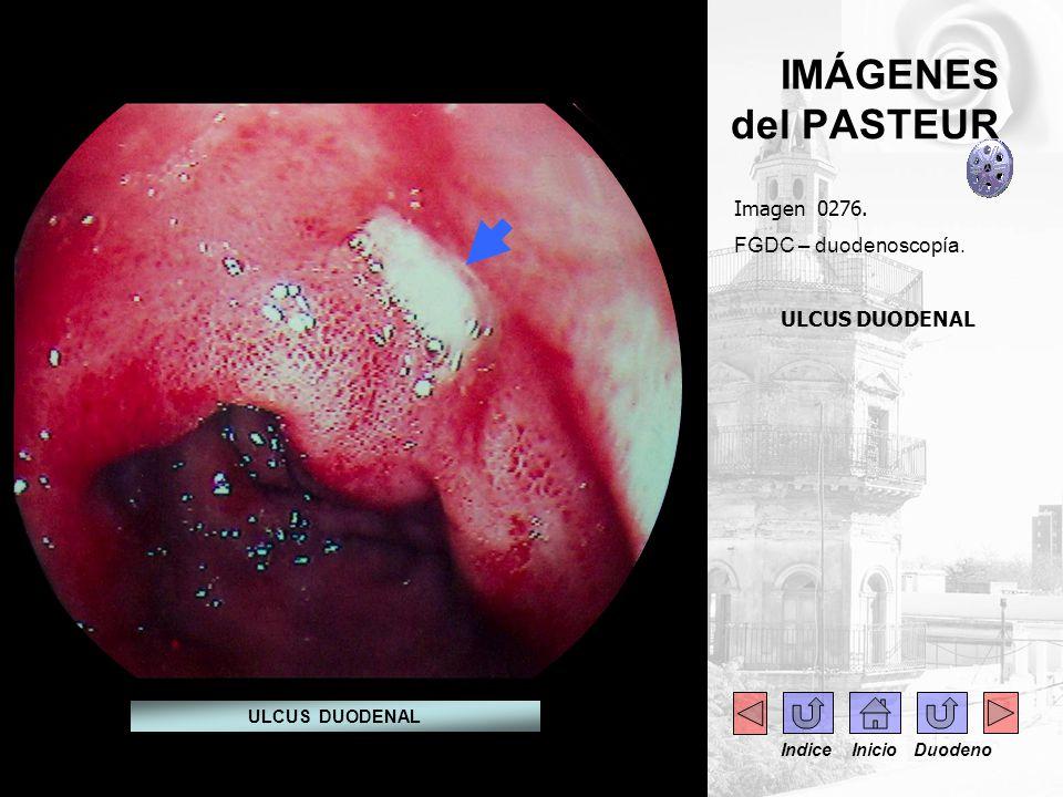 IMÁGENES del PASTEUR Imagen 0276. FGDC – duodenoscopía. ULCUS DUODENAL
