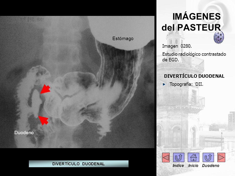 IMÁGENES del PASTEUR Estómago Imagen 0280.