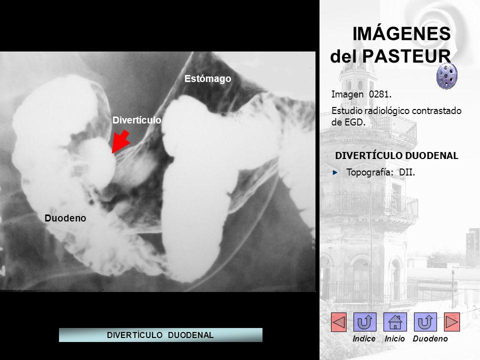 IMÁGENES del PASTEUR Estómago Imagen 0281.