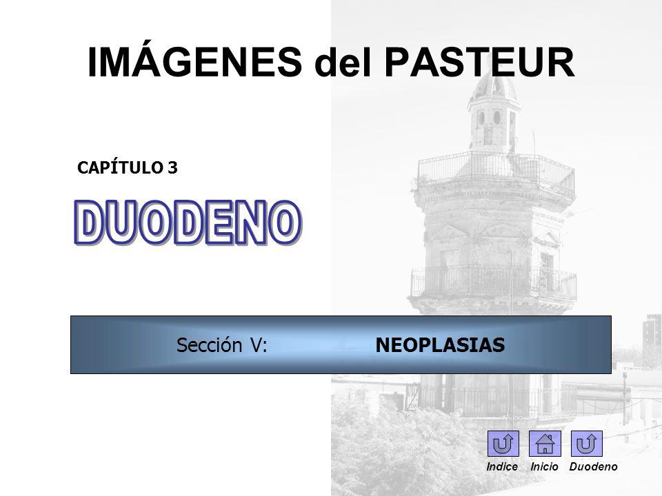 IMÁGENES del PASTEUR DUODENO Sección V: NEOPLASIAS CAPÍTULO 3