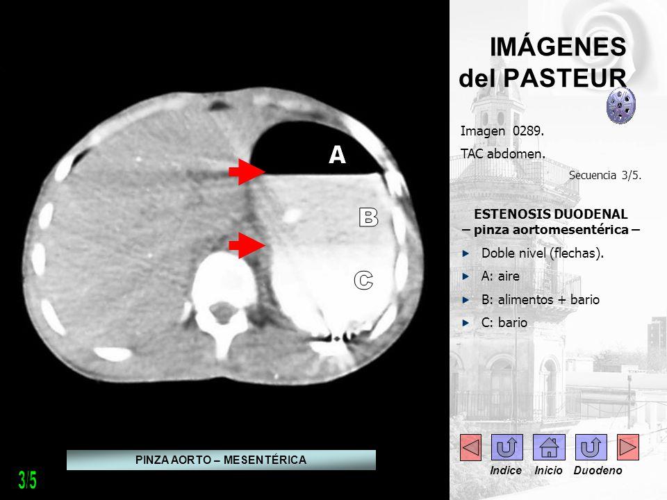 A B C 3/5 IMÁGENES del PASTEUR . - . Imagen 0289. TAC abdomen.