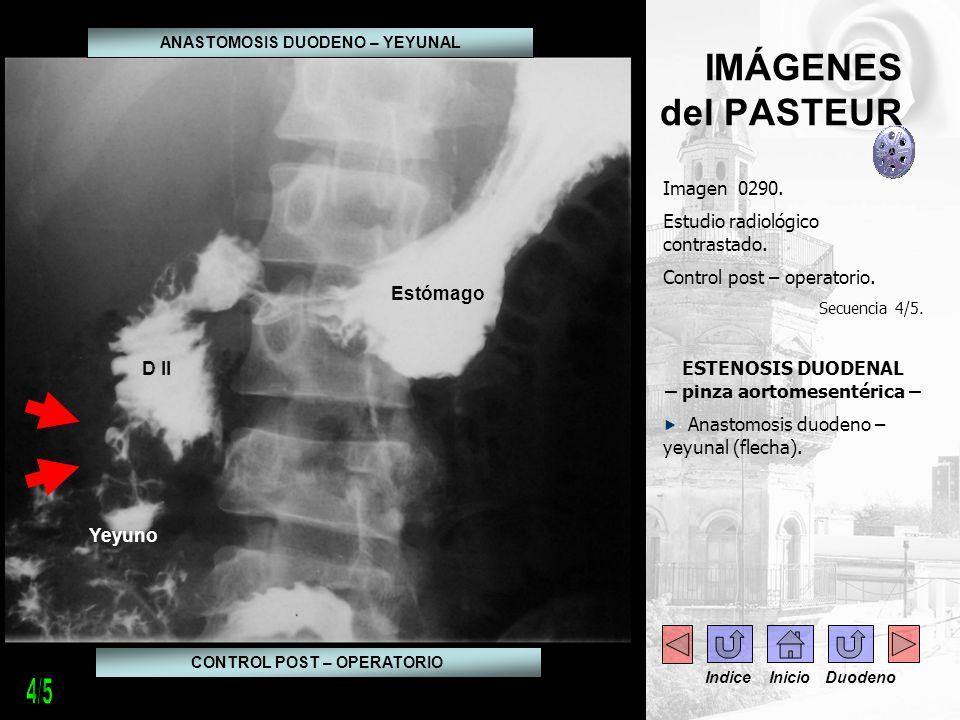 4/5 IMÁGENES del PASTEUR Imagen 0290. Estudio radiológico contrastado.
